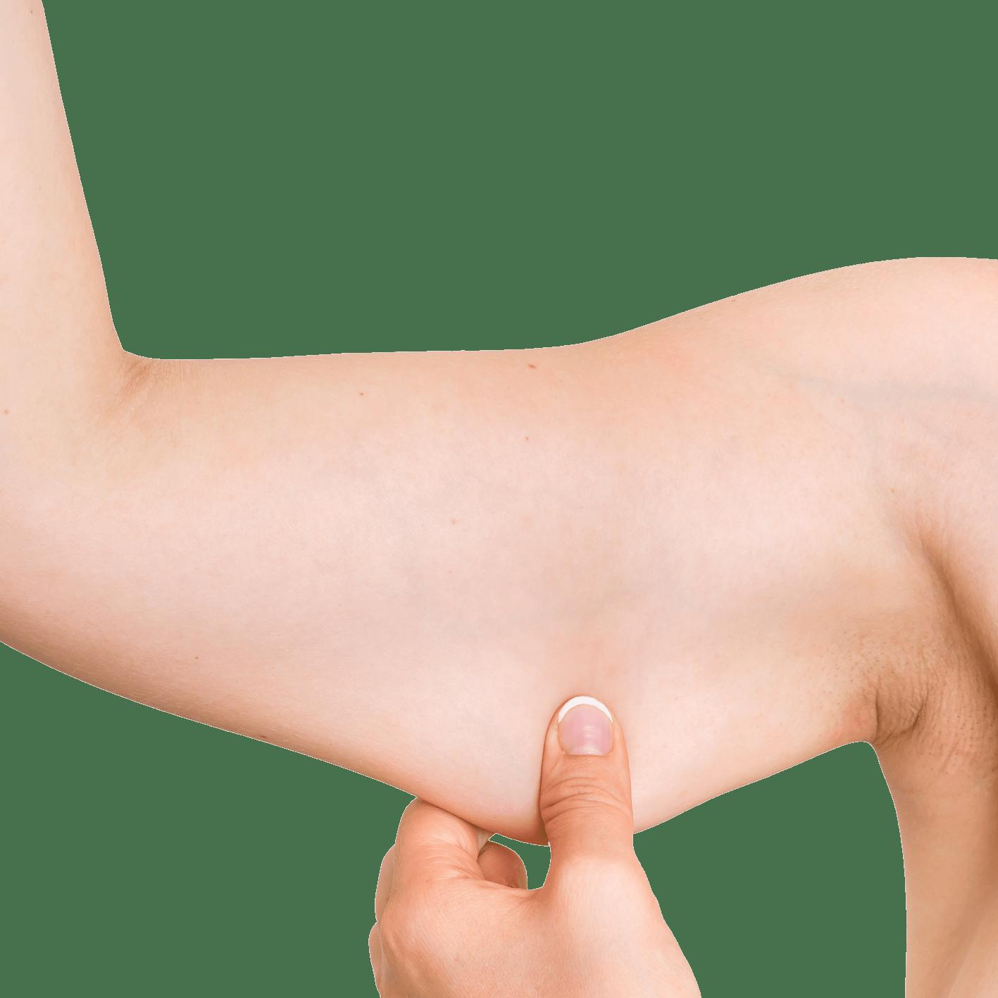 Flacidez do corpo / Thalassa